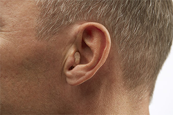 Completely-in-the-Canal (CIC) Hearing aid style