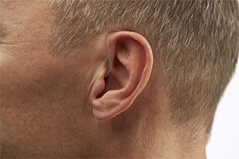 Receiver-in-the-Ear (RITE) Hearing aid style